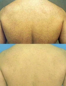 Sheer Art Beauty Diode Laser Hair Removal